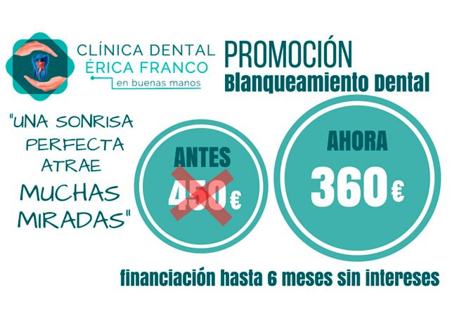 PROMOCIÓN PRIMAVERA DE BLANQUEAMIENTO DENTAL